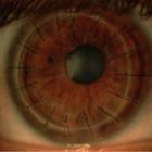 16 швов на роговице. Пересадка роговицы, corneal transplants.