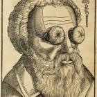 Treatment of eye! G. Bartisch (1583).