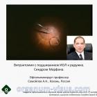 Surgery Eye. Marfan syndrome. Операция витрэктомии с подшиванием ИОЛ (IOL). Новости офтальмологии портала Орган зрения organum-visus.ru