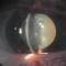 Факоморфическая глаукома.