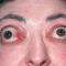 Еndocrine ophthalmopathy. Новости офтальмологии портала Орган зрения www.organum-visus.com